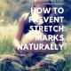 preventing stretch marks, preventing stretch marks while pregnant, preventing stretch marks in pregnancy